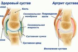 Лечение артрита одним уколом